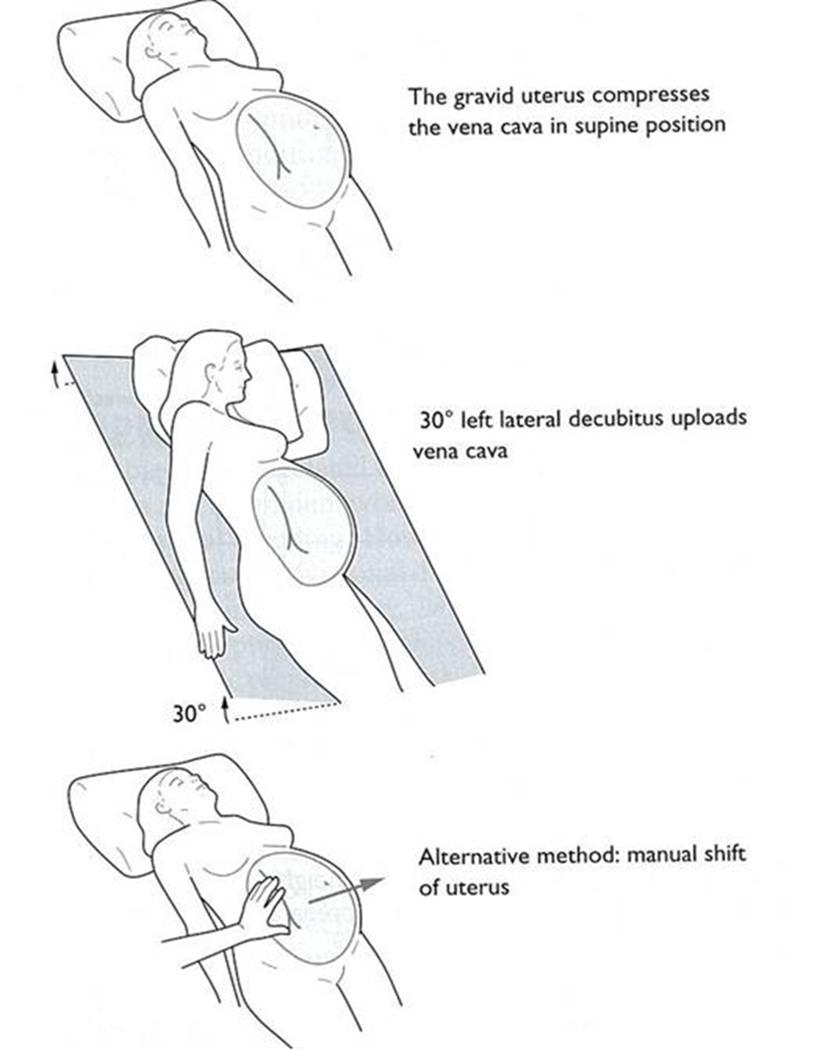 obstetric trauma introduction trauma victoria respiratory